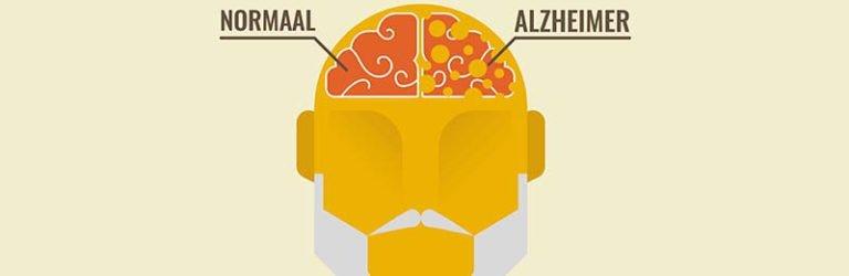 Ziekte van Alzheimer